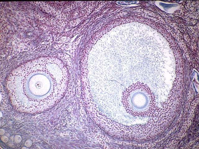 Pictures of Follicles in Ovaries Picture of a Graafian Follicle